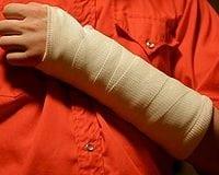 Personal-Injury-in-Ontario-California